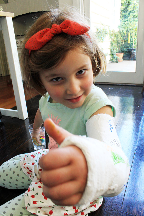 Olive giving thumbs up in cast